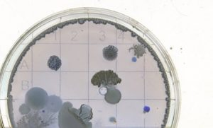 Petri Dish Culture - Grow Your Culture of Lab Safety
